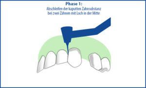 Brücke als Zahnersatz - Phase 1