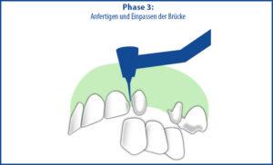 Brücke als Zahnersatz - Phase 3