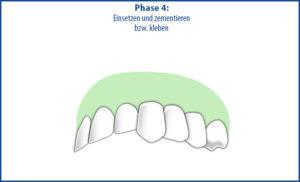 Brücke als Zahnersatz - Phase 4