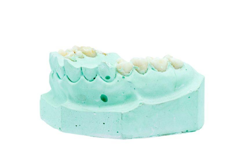 Mit Zahnersatz versorgte Zähne.